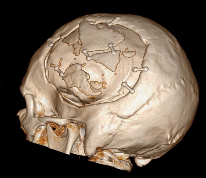 Nieuwe afbeelding schedel