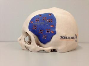 schedelplaat 2