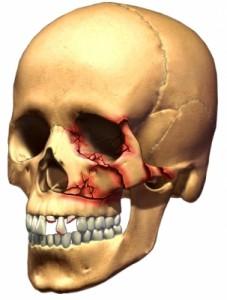 trauma-tand-hoofd-hals-onderkaak-fractuur-breuk-kaak-neus-jukbeen